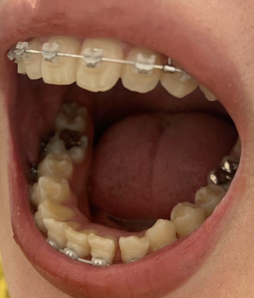 歯列矯正 ワイヤー
